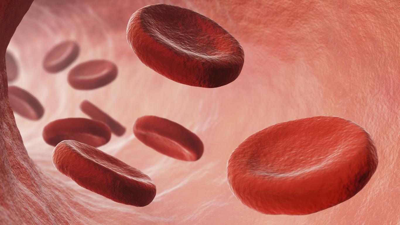 Die Blutvergiftung soll die dritthäufigste Todesursache in Deutschland sein. Stimmt das?