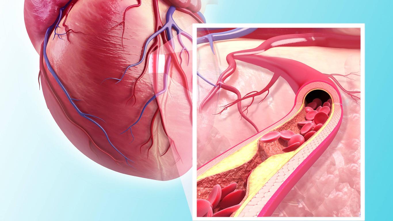 Welches Fett stärkt mein Herz?