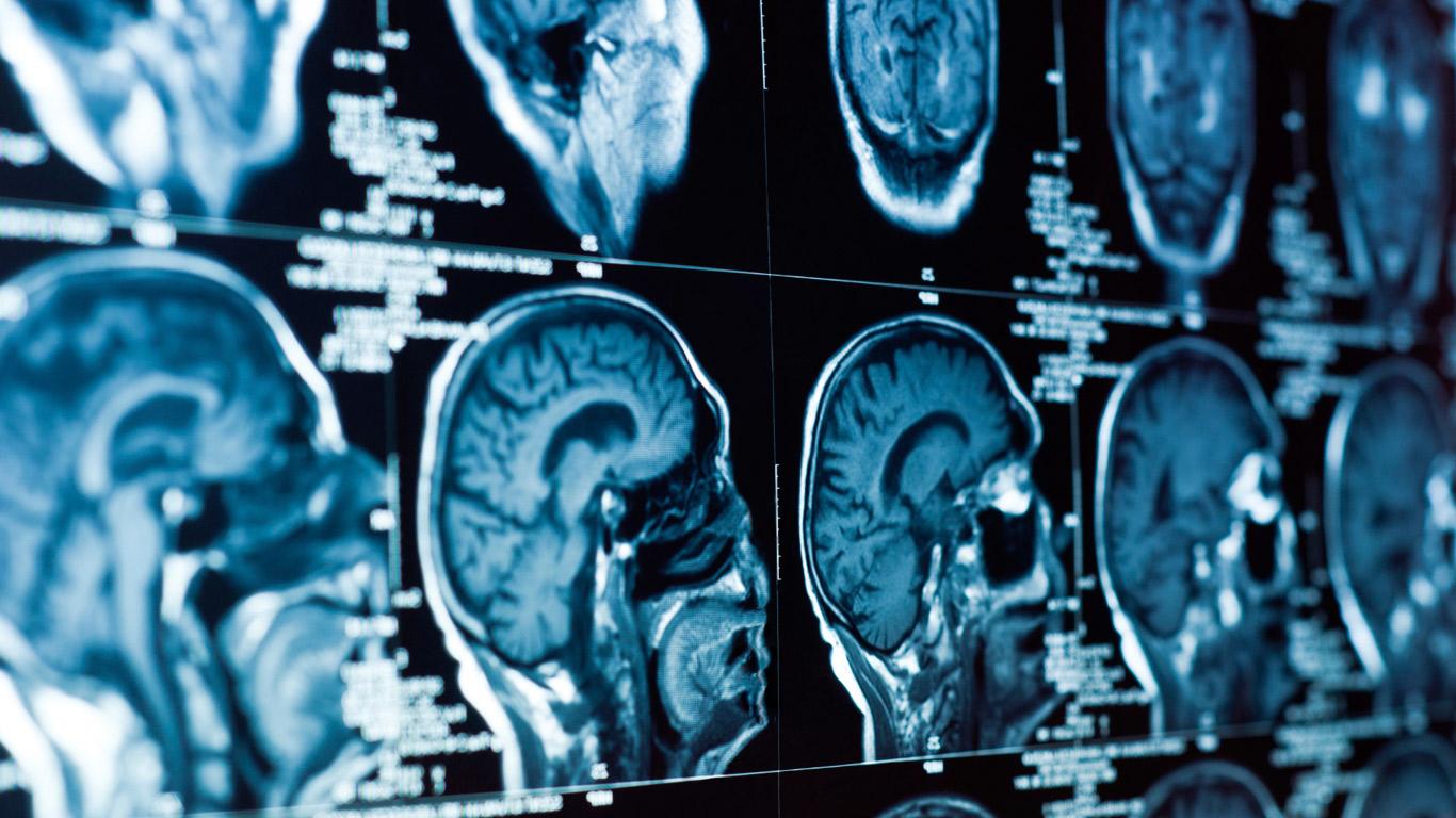 Parkinson: Eine unheilbare, aber zu behandelnde Krankheit